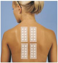 patch test for allergic contact dermatitis