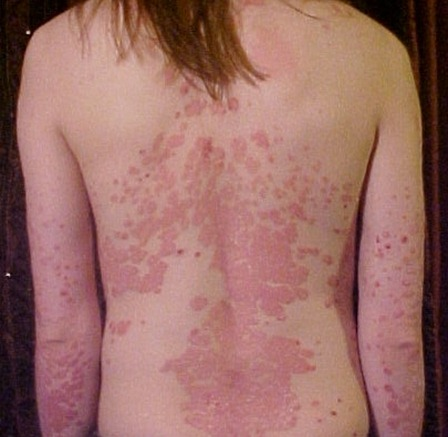 Psoriasis-on-back