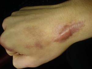 Elevated keloid scar on right wrist