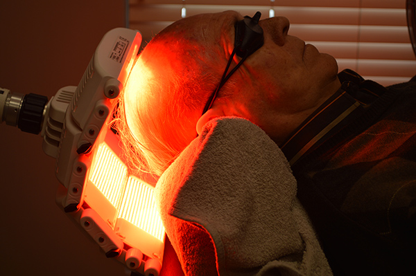 Photodynamic therapy for sun damage of the scalp